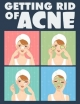 Getting Rid of Acne - Sheba Blake