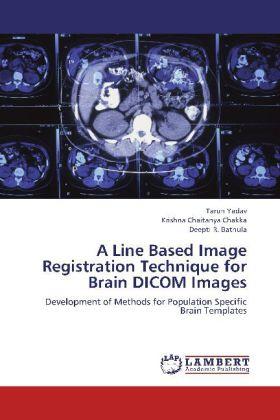 A Line Based Image Registration Technique for Brain DICOM Images - Development of Methods for Population Specific Brain Templates - Yadav, Tarun / Chakka, Krishna Chaitanya / Bathula, Deepti R.